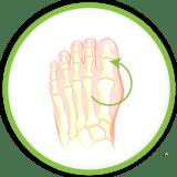 dolore piedi